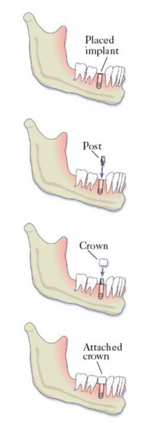 implant crown placement steps delray beach