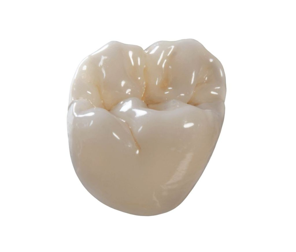 dental-crown-type-delray-beach