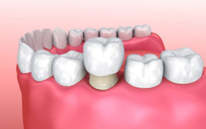 Types of Dental Crowns and Cost - Crown on prepared tooth