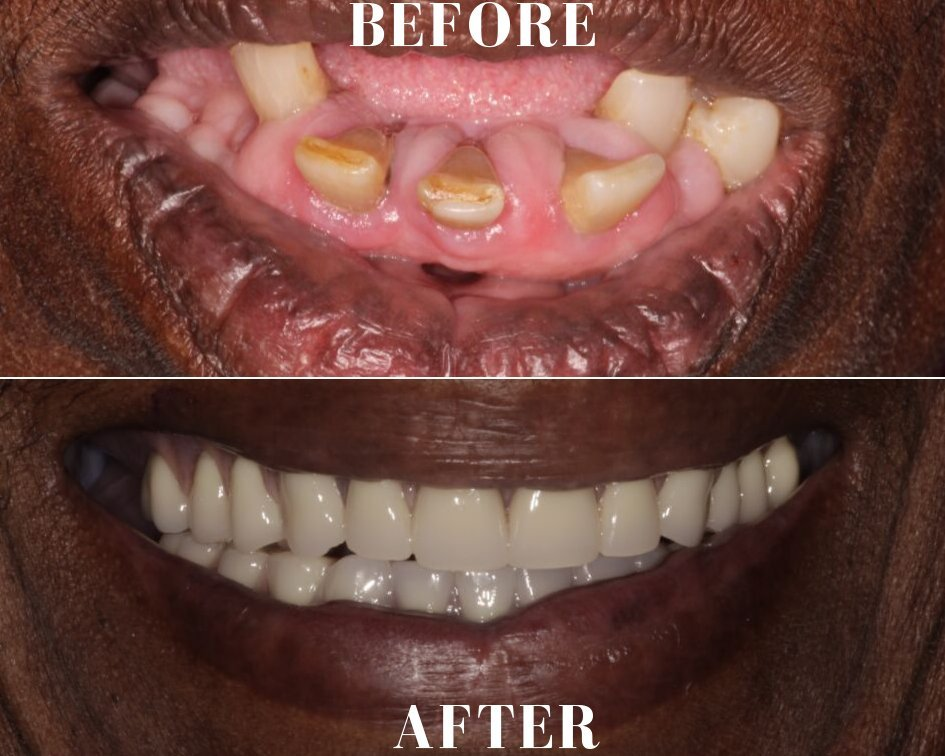 Full Dentures Delray Beach