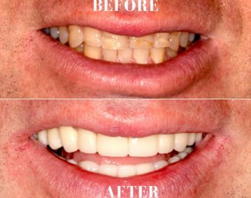 Smile Makeover Delray Beach