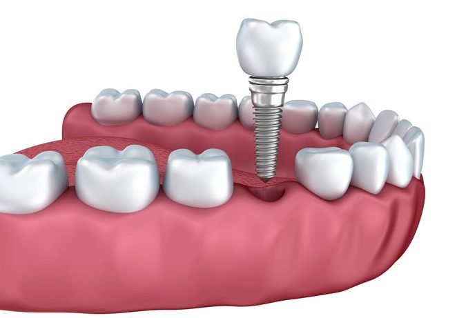 dental implant crown in delray beach