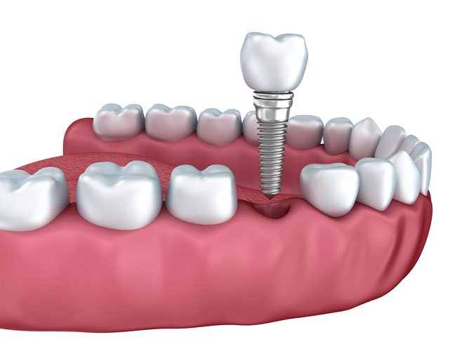 dental implant crown in delray beach