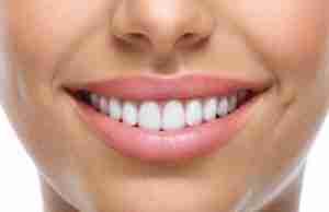 teeth-bonding-delray-beach