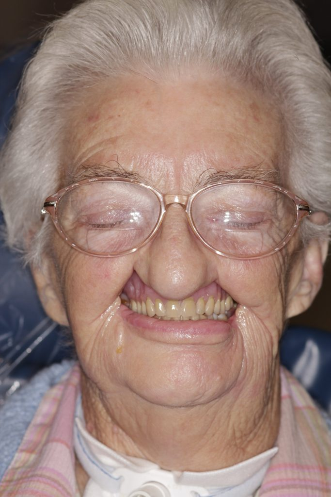 maxillofacial-prosthodontist-before-after-woman-before2