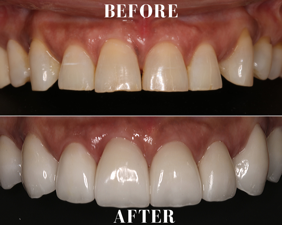 Porcelain-Veneers-Delray-Beach-before-after