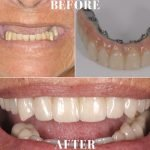 Upper Implant Reconstruction Delray Beach