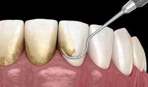 Gum Disease and Dental Implants