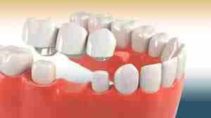three-teeth bridge