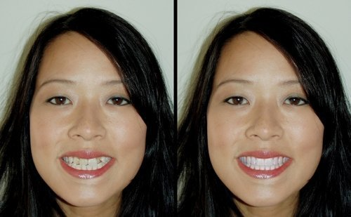 first-dentist-visit-cosmetic-imaging