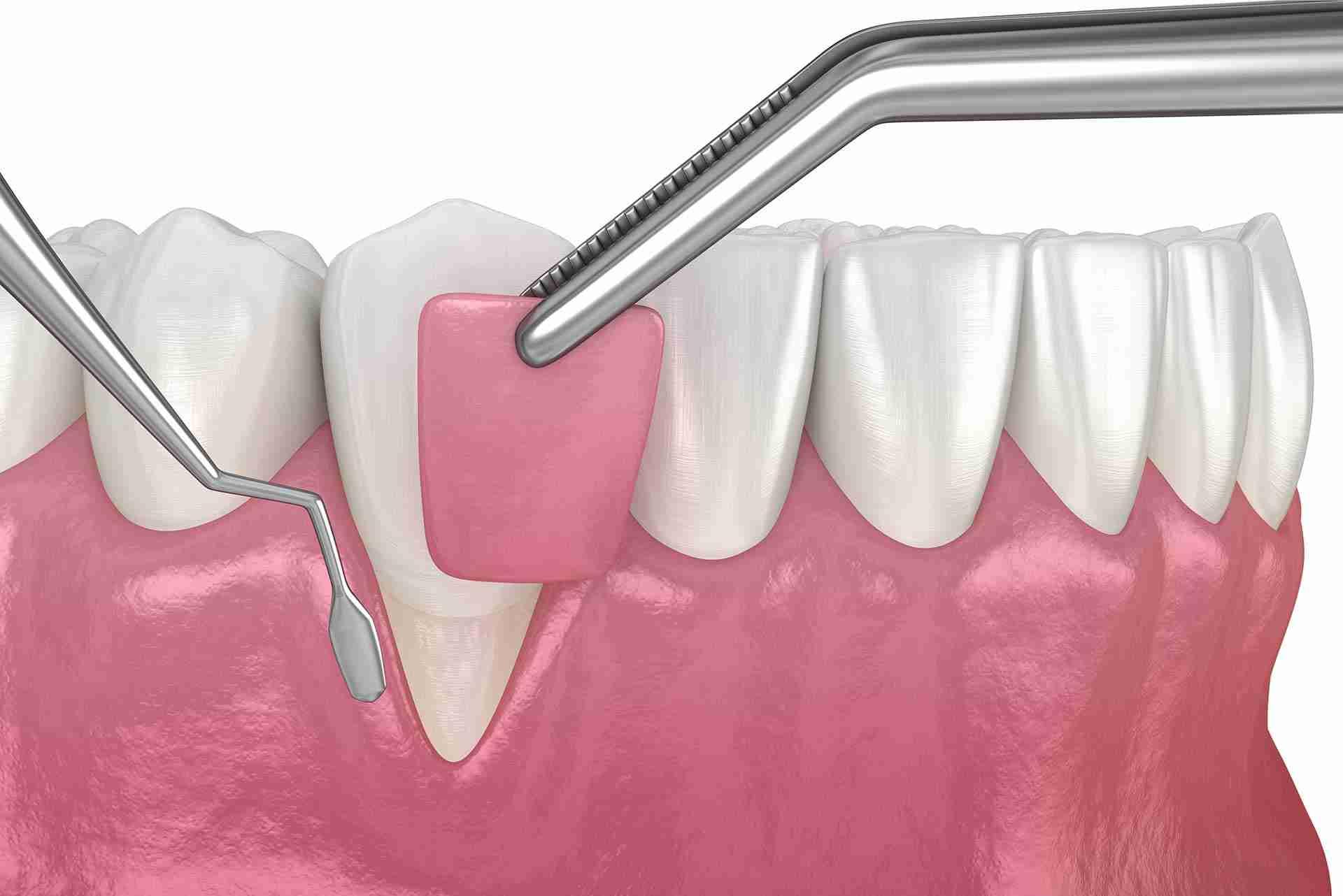 gum graft procedure