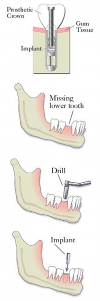 implant_crown_steps_Delray_Beach_1