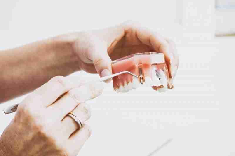 Gum Disease and Dental Implant Crowns