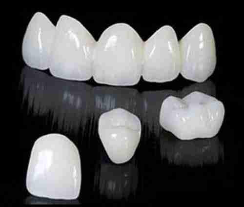 types-of-crowns-zirconia