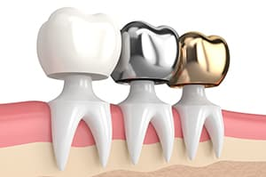 types-of-dental-crowns-gold-silver-ceramic